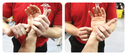 Placing your hand on patients TFCC area (just below the 5th metacarpal bone and on the styloid process of the ulna bone), clicking, excessive movement and pain may be present if the TFCC is unstable due to injury.